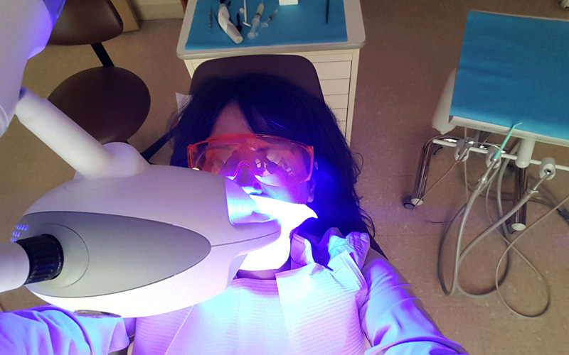 zoom whitening blue light
