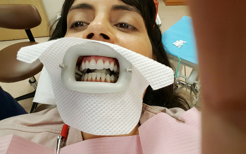 zoom whitening mouth