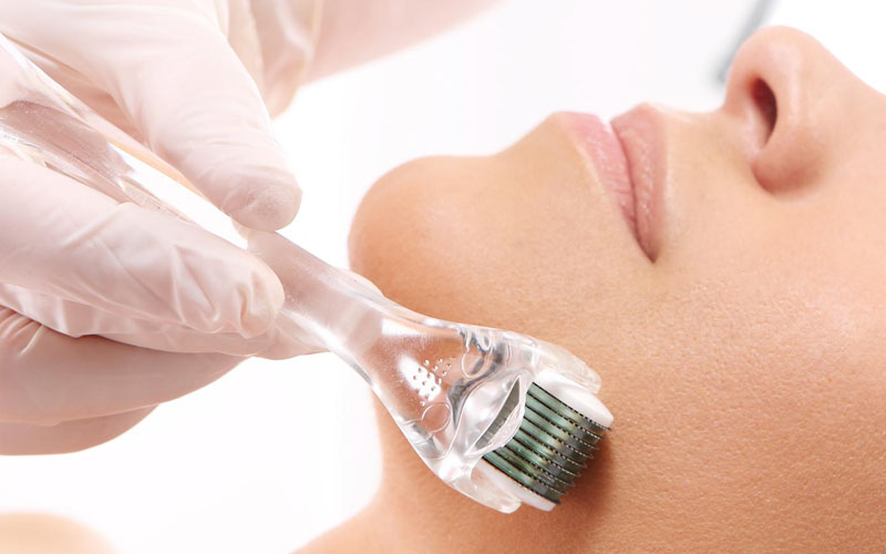 Microneedling is a beauty treatment that regnerates cells